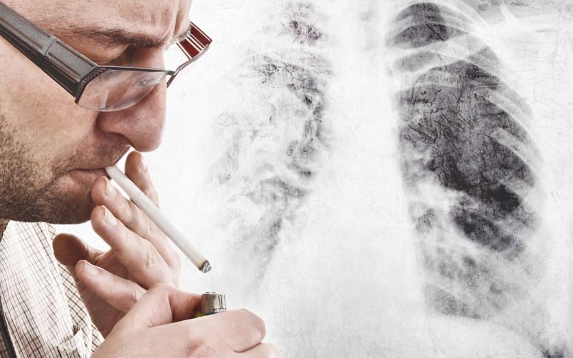Lungenkrebs Fruehtest Duesseldorf